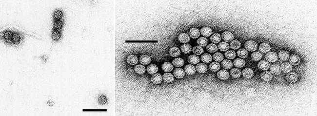 30nm spherical virus particles isolated from Yellowstone
